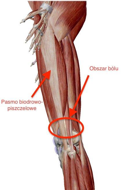 Ból po bocznej stronie kolana_01